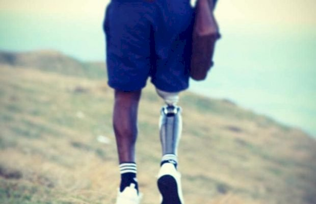 I lost my leg but found my purpose! South African shares inspiring story!