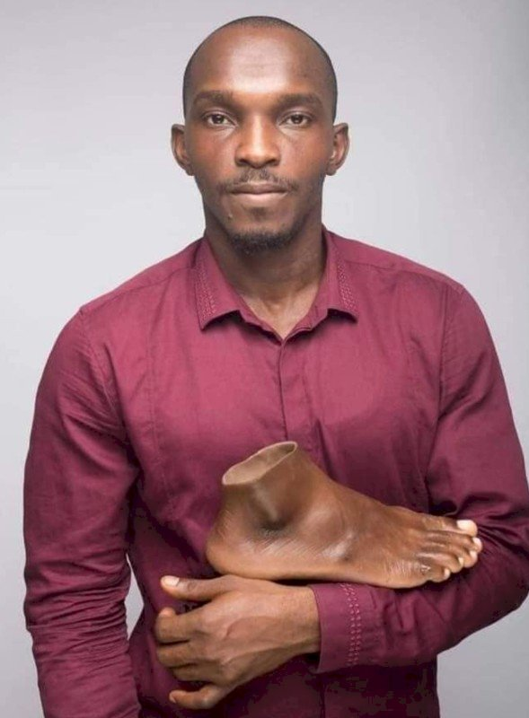 Meet John Amanam The Prostheses Genius Giving Hope To Amputees In Africa And Beyond